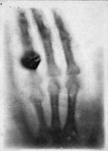 The hand of Anna Berthe Röngten, the very first X-ray radiograph, done on the 22 December 1895.